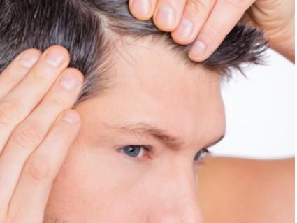 Productes anticaiguda del cabell d'us tòpic